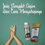 Obat Herbal Jelly Gamat Walet Mengobati Eksim