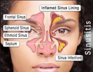 Obat Sinusitis Ampuh