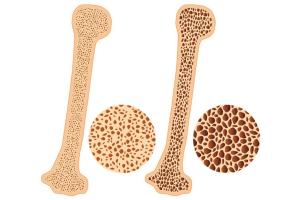 Jelly Gamat Untuk Osteoporosis Jelly Gamat Walet