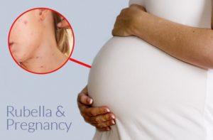 rubella pada ibu hamil