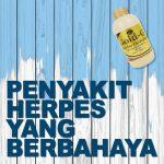 Penyakit Herpes Yang Berbahaya